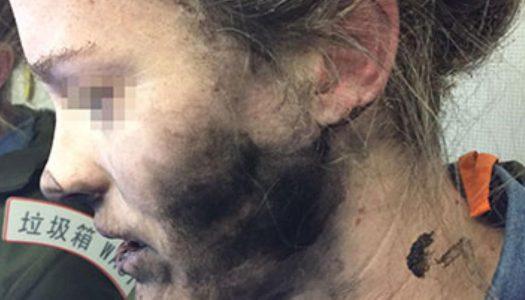 Woman Suffers Burns After Her Headphones Explode Mid-Flight
